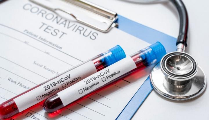 COVID-19: Bạn có triệu chứng không? Cài đặt ứng dụng này để các bác sĩ có thể giúp bạn 3
